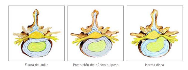 Tratamiento con osteopatia de la hernia discal